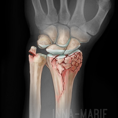 Distal Tibia Fracture for Trial Evidence