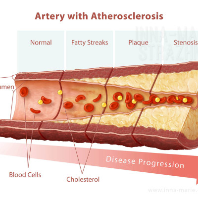 Artery with Atherosclerosis